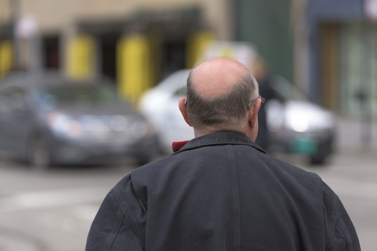 Bald,baldness,bald truth